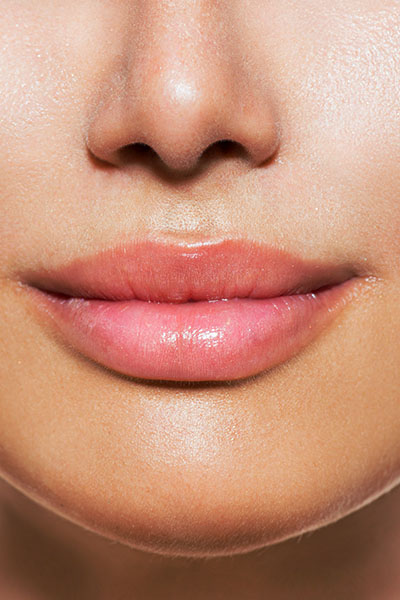 Lip Filler treatment at Skinologie Skin Clinic Melbourne